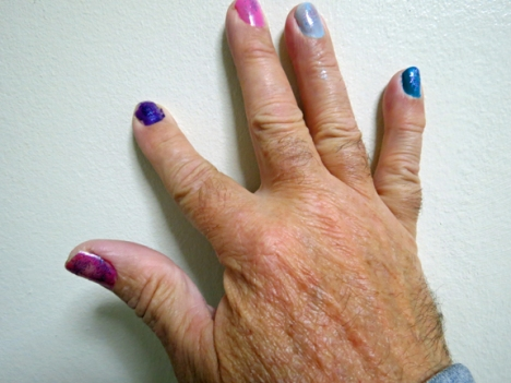 "Rylin's ""handy"" work on Grandpa Chuck's right hand."